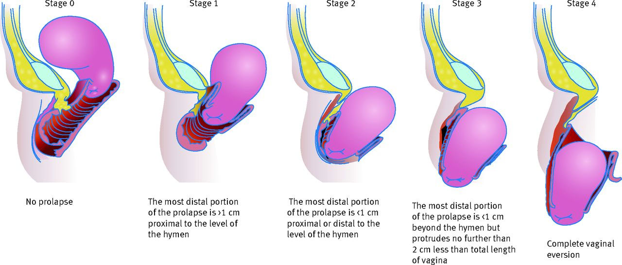 Stages of Pelvic Organ Prolapse